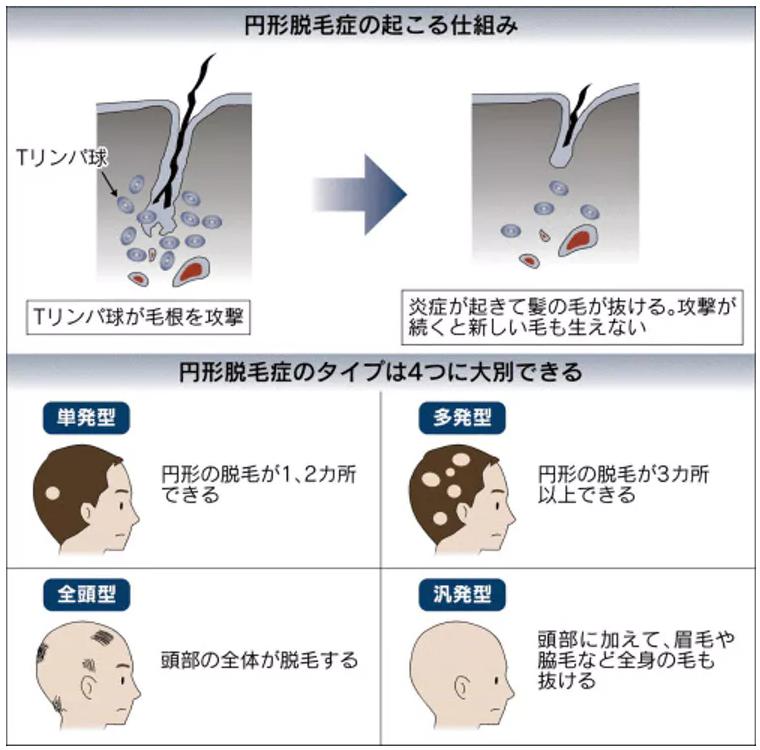 円形脱毛症の図解